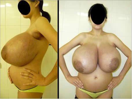 беременность после липосакции