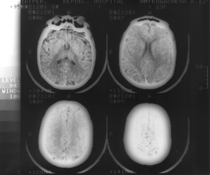 Как лечить дисфункцию срединно стволовых структур